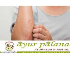 Best ayurvedic treatment for psoriasis in kerala