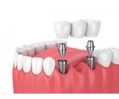 Implant services in chennai - Akeela Dental Care