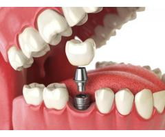 Devs Oral-Dental Implants In Pune