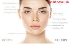 Botox treatment in Coimbatore| Botox injection in Coimbatore