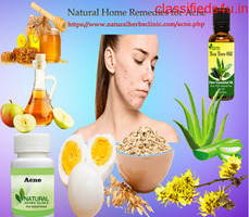 Get Rid Of Acne with Natural Home Remedies