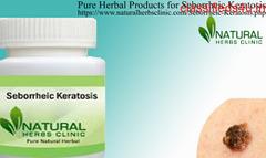 Natural Remedies for Seborrheic Keratosis
