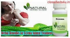 Buy Herbal Product for Eczema Online