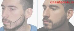 Beard Growth Treatment Clinic