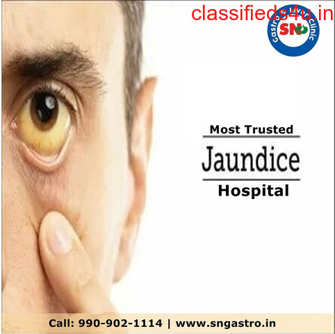 Which is Ahmedabad's most trusted jaundice hospital?
